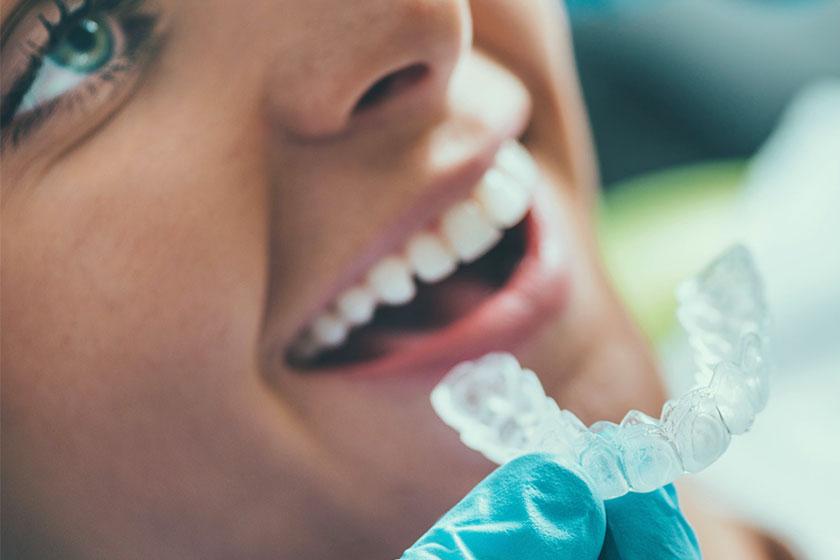 Il sistema Invisalign: l'ultimo ritrovato dell'ortodonzia.