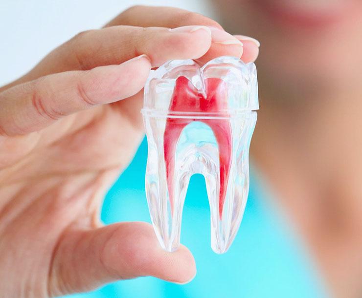 Trattamenti di endodonzia: come agire sui tessuti interni del dente.