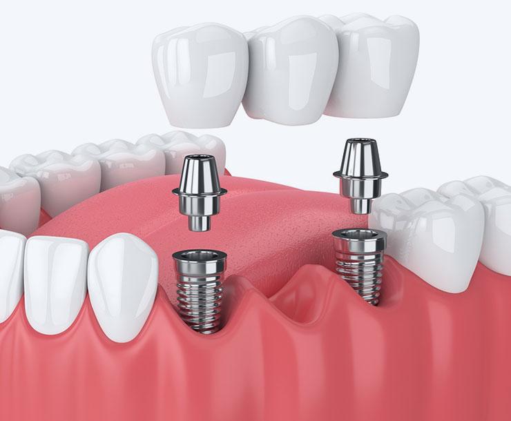 L'implantologia dentale tramite protesi fisse e mobili rappresenta la soluzione ottimale dei denti mancanti, sia da un punto di vista funzionale che estetico.