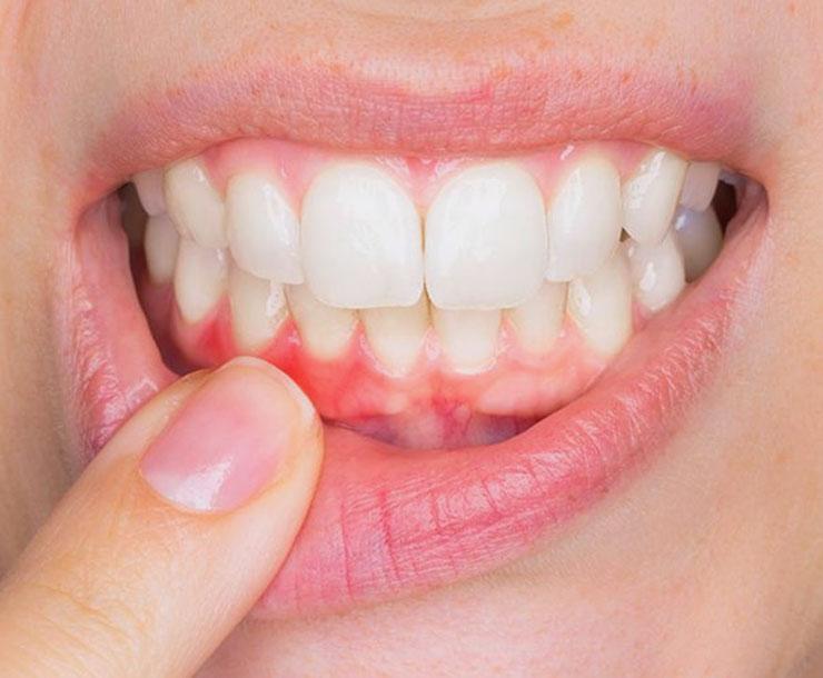 Parodontologia: cura dei tessuti e delle strutture di supporto del dente.