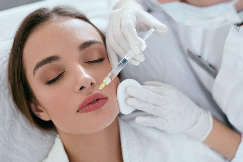 Più volume alle labbra con il filler a base di acido ialuronico.