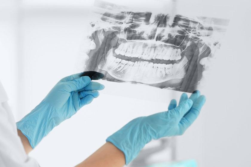 I servizi odontoiatrici offerti dallo Studio Pellegrino Monnanni.