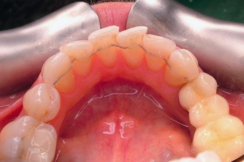 Ortodonzia linguale senza attacchi: estetica e comodità.