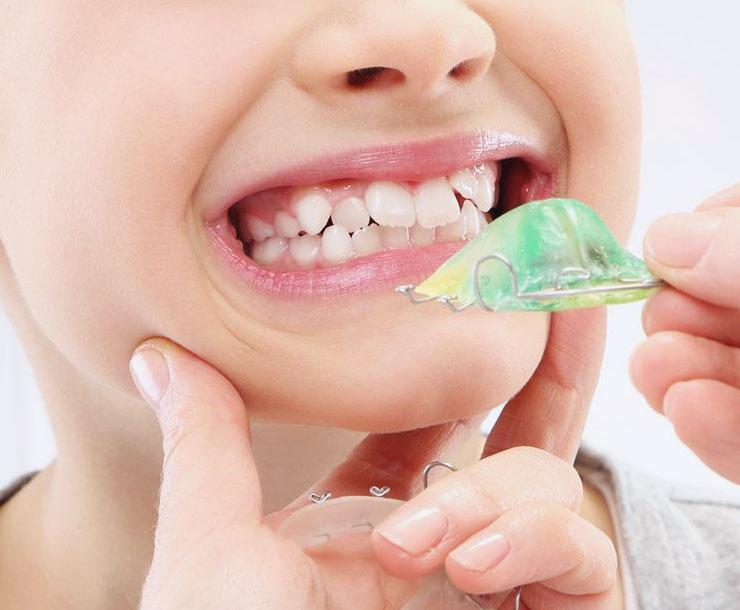 Trattamenti di ortodonzia: estetica e funzionalità.