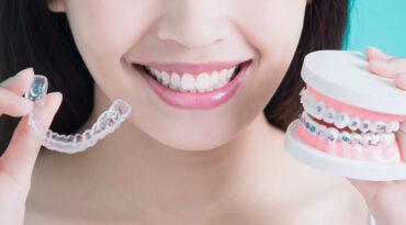 Denti storti, cause e rimedi per tornare a sorridere.