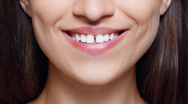 Diastema dentale: è solo una questione estetica?